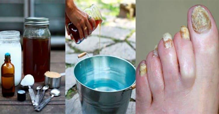 Мега простий метод позбавлення від грибка нігтів!
